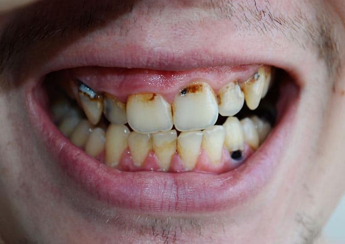 Bad Teeth from Drugs- Miami, Florida